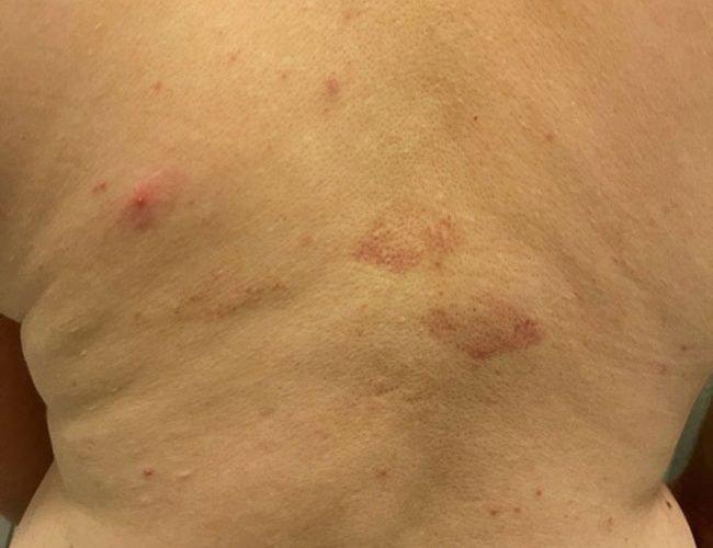 Woman Finds Strange Bruises on Her Husband's Back.